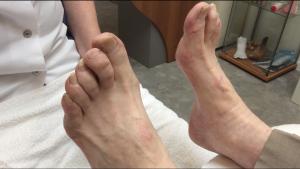Oudere-voet-pedicuretip