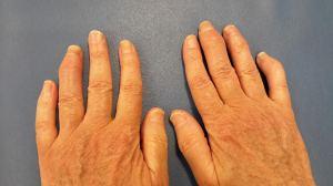 Artritis-Psoriatica