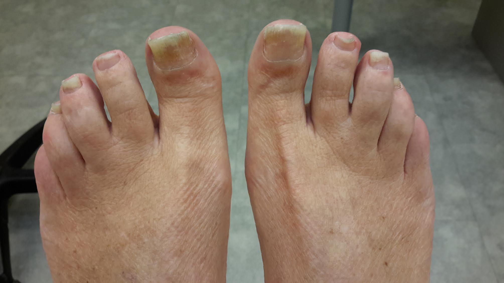 artritis psoriatica voeten